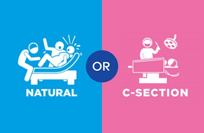 The difference between C-section and natural birth