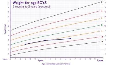 Nutricia pediatric DRM growth graph weight for age boys 6 months to two years z scores