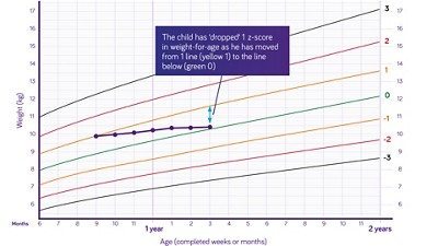 Nutricia pediatric DRM growth graph weight for age boys 6 months to two years z scores 2