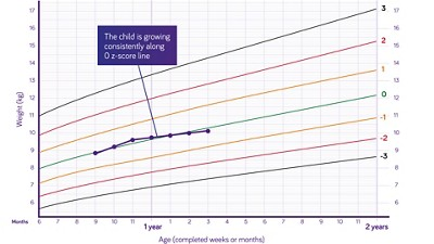 Nutricia pediatric DRM growth graph weight for age boys 6 months to two years z scores 3