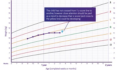 Nutricia pediatric DRM growth graph weight for age boys 6 months to two years z scores 1