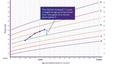 Nutricia pediatric DRM growth graph weight for age boys six months to two years