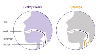 Nutricia stroke dysphagia swallowing difficulties illustration 3840 2160px