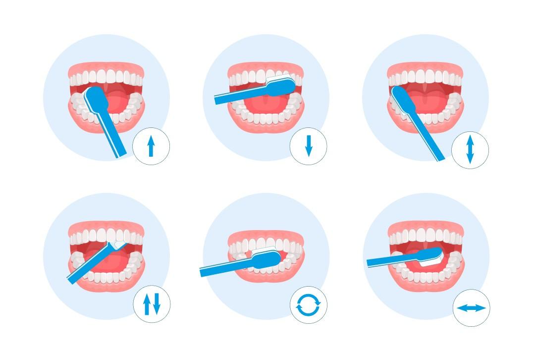 Kак правильно чистить зубы
